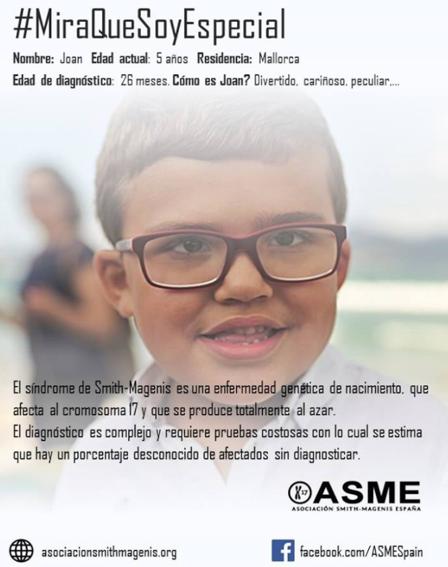 asociacion_española_del_smith_magenis